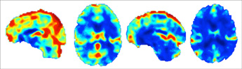 Studies Point to Quantitative, Prognostic Role for Imaging in Head Injury