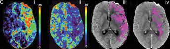 Multiphase CT Shows Promise for Stroke Patients