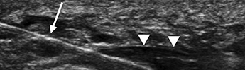 Ultrasound-guided Procedure Effective for Treating Plantar Fasciitis