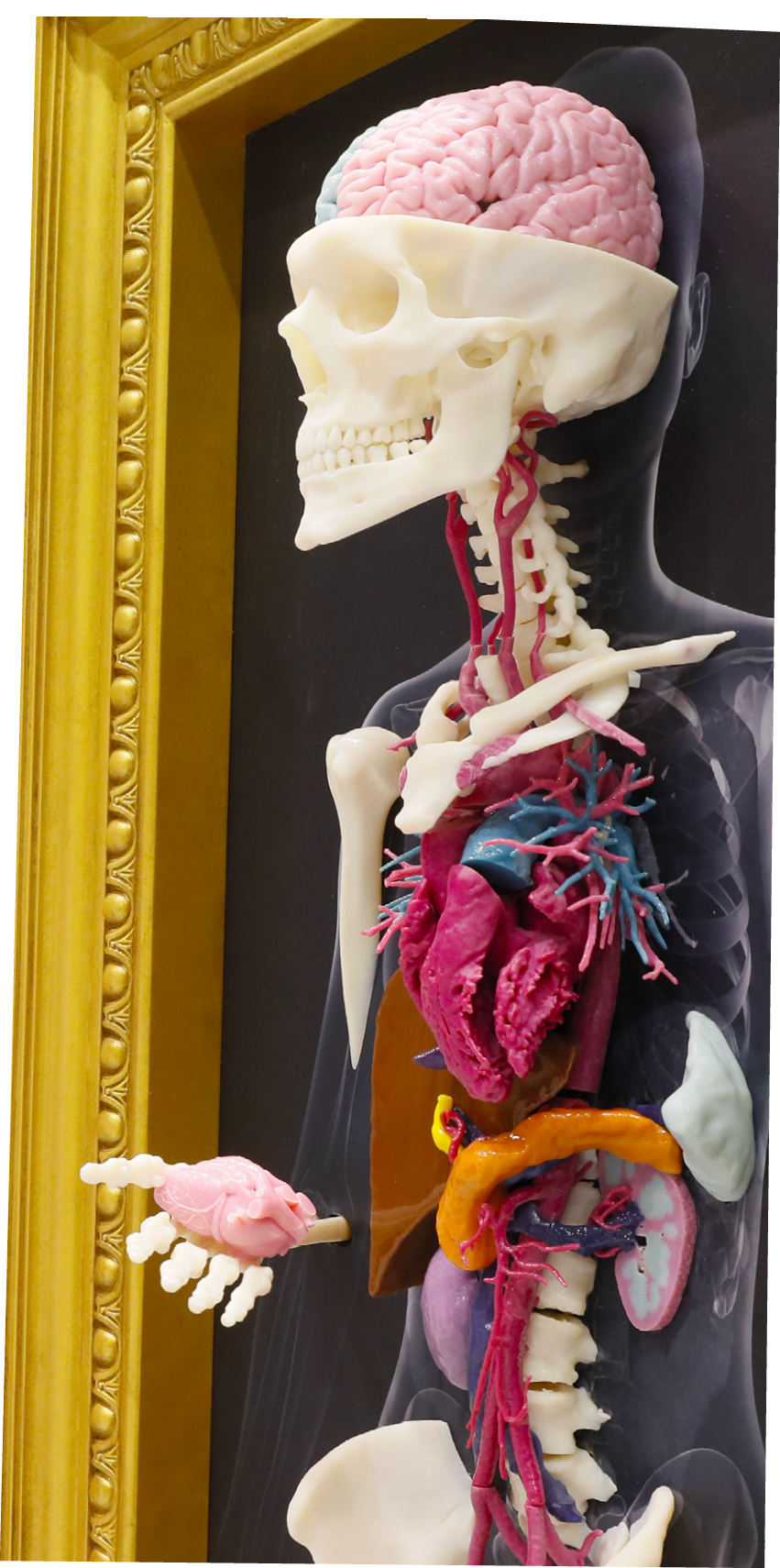 Defining Radiology\'s Role in the 3-D Printing Explosion