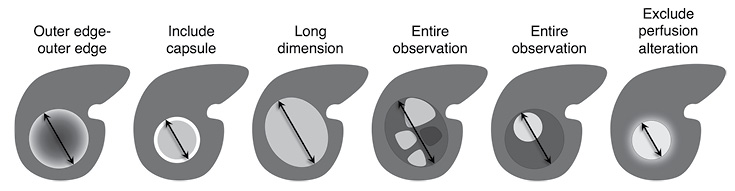 Schematic of Observation