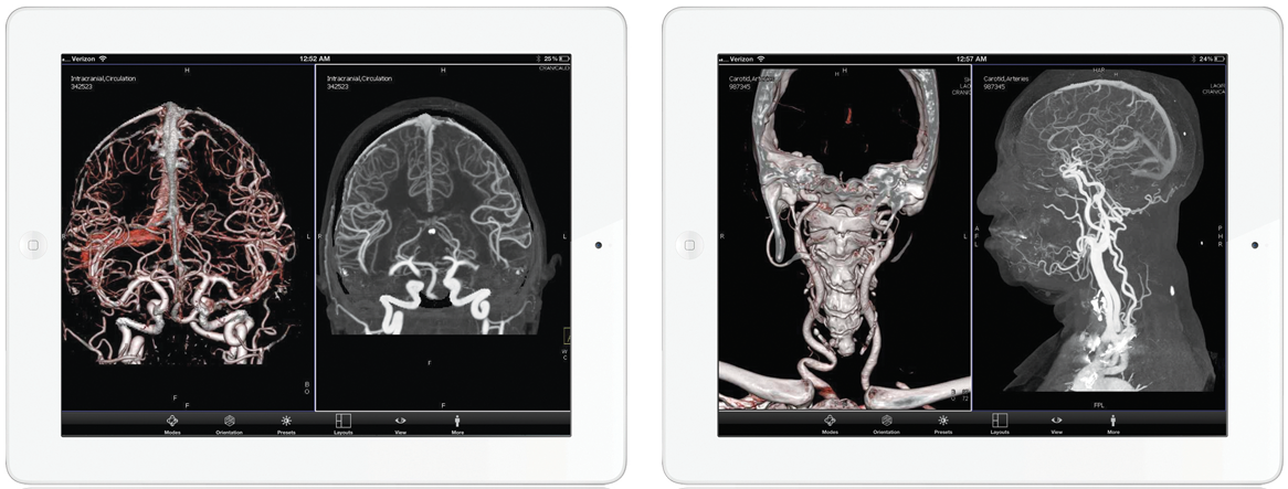 Radiologic images on the iPad
