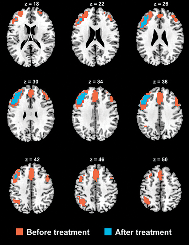 Functional connectivity in severely depressed patients