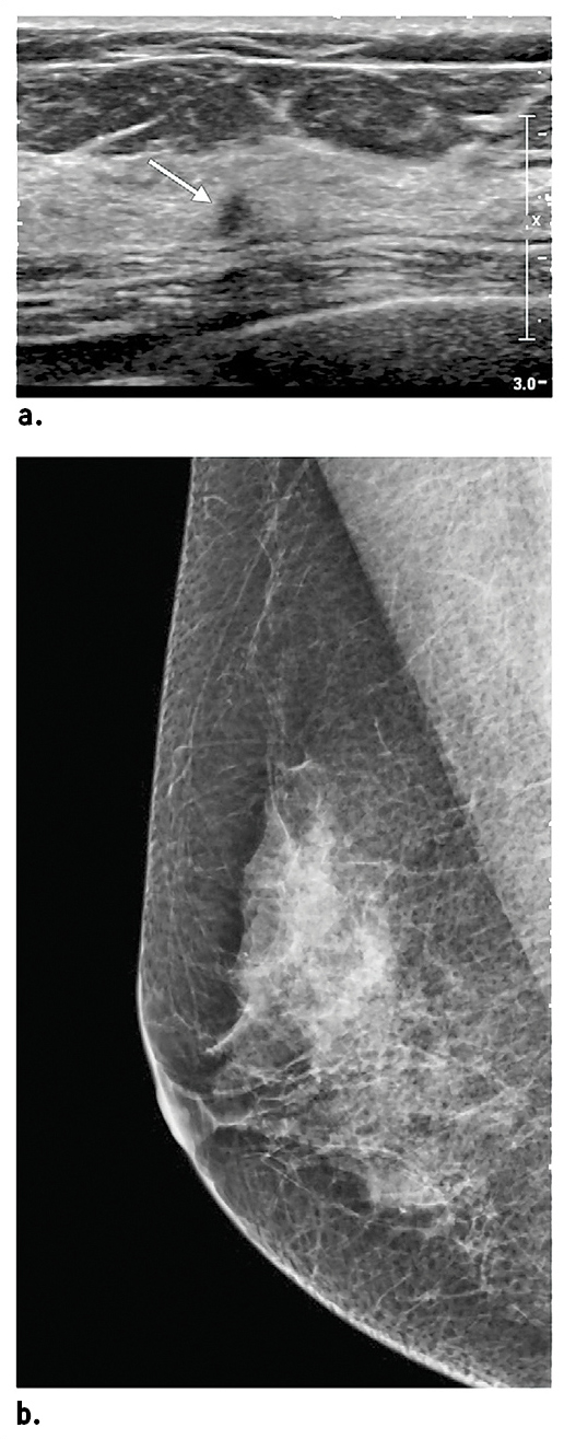 Mammographically occult cancer detected at screening breast ultrasound