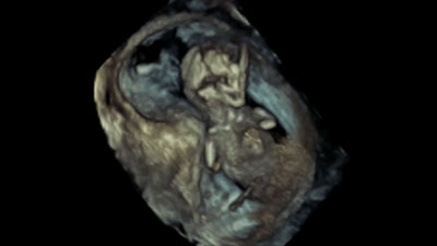 Fetal 3D ultrasound video
