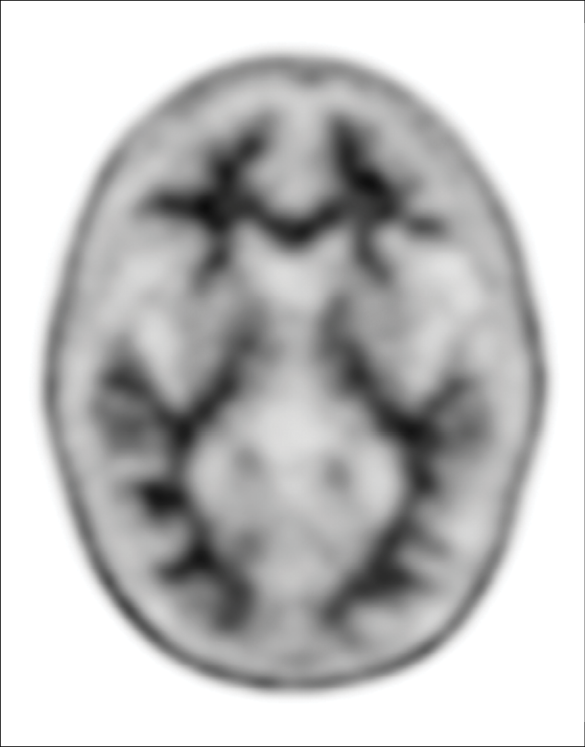 Amyloid Negative image