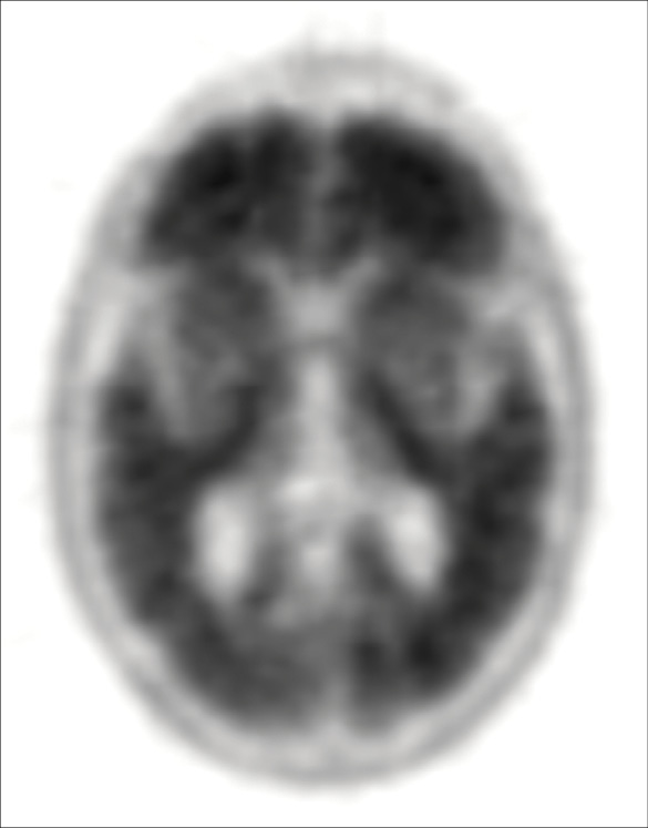 Amyloid Positive image