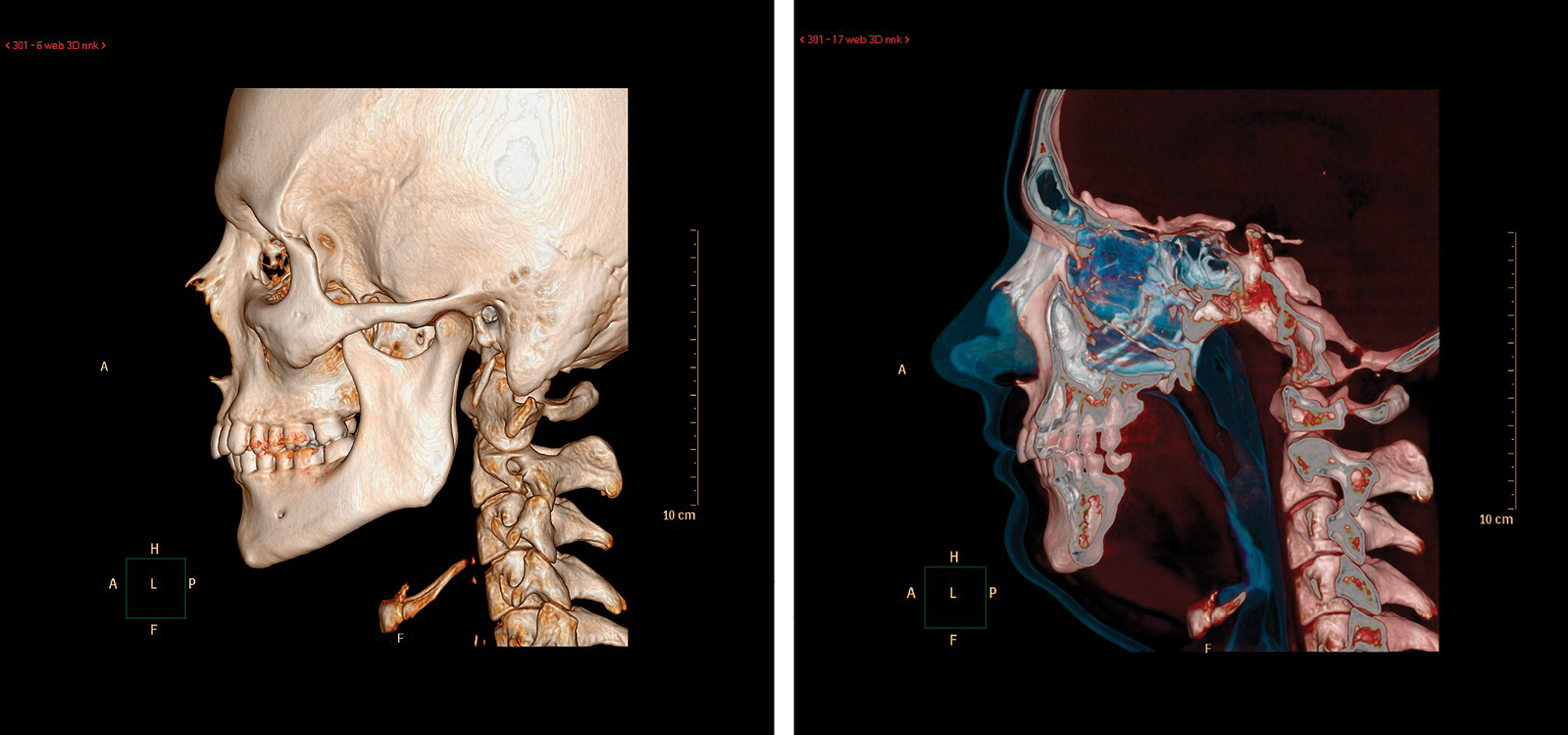 Sleep Apnea CT