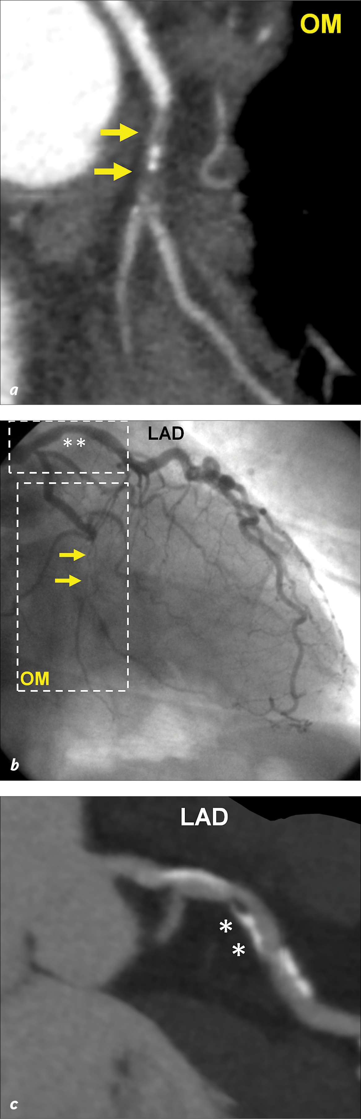 Coronary CT angiogram