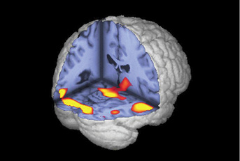 Abnormal brain activity in memory and visual regions