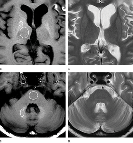 Researchers have confirmed an association between a common MR imaging contrast agent and abnormalities on brain MR imaging
